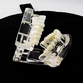 牙科牙齒病理演示 可拆卸活動牙齒模型