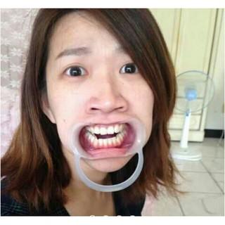 [現貨]綜藝玩很大桌遊整人派對遊戲擴嘴器張口器闊嘴器團康婚禮闖關牙齒美白